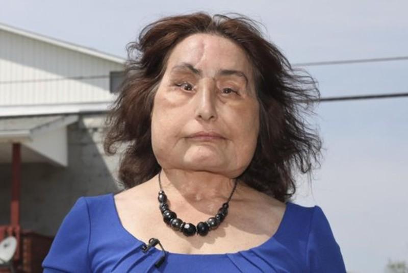Muere Connie Culp, primera receptora de un trasplante facial en EU. Noticias en tiempo real