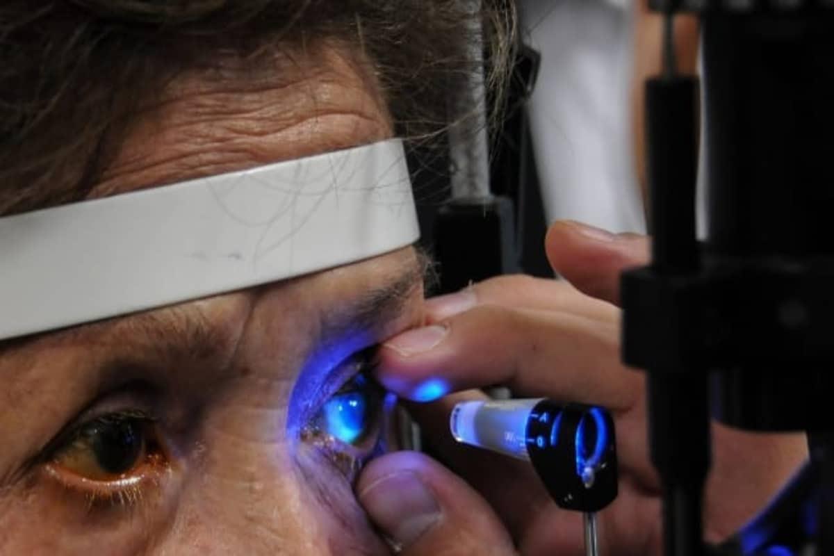 Glaucoma, primera causa de ceguera a nivel mundial